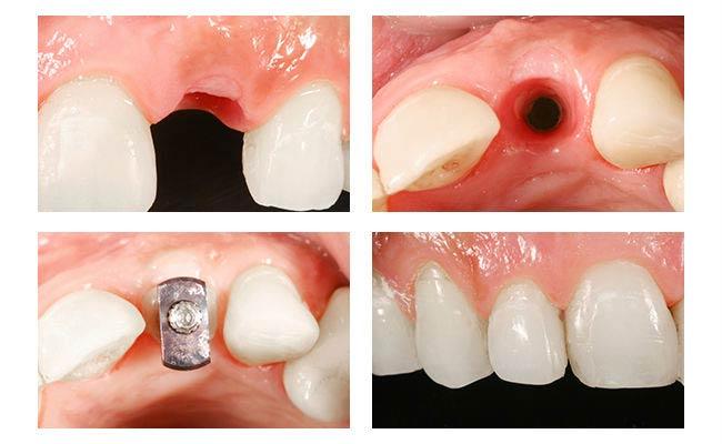 безоперационные импланты зубов