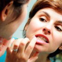 Причины воспалительного процесса и гноя в десне