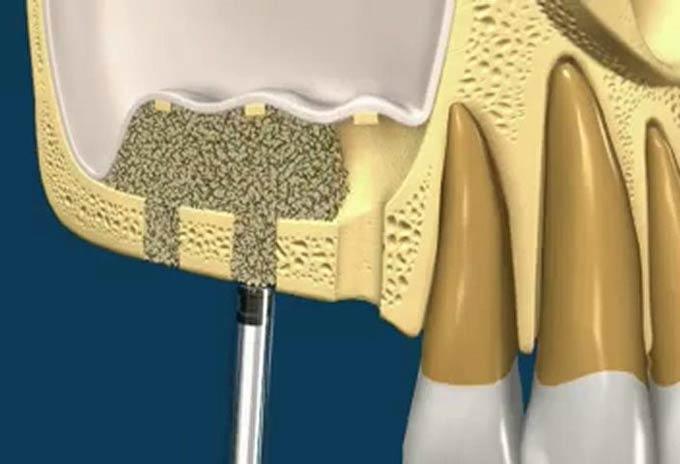 схема наращивания костной ткани