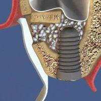 Наращивание утраченного объема костной ткани