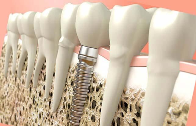 имплантация с наращиванием кости