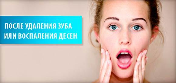 как полоскать рот хлоргексидином после удаления зуба