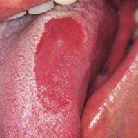 Распространенные виды глоссита языка и методы лечения