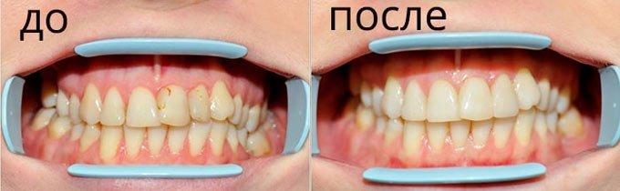 фото до и после фторирования