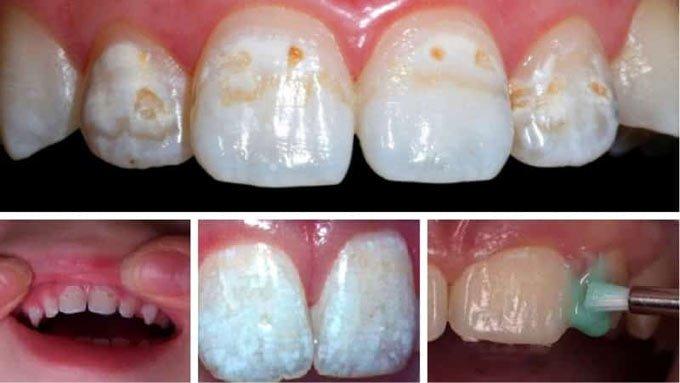 домашнее фторирование зубов