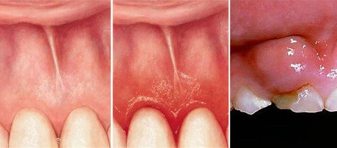 почему опухают десны и болят