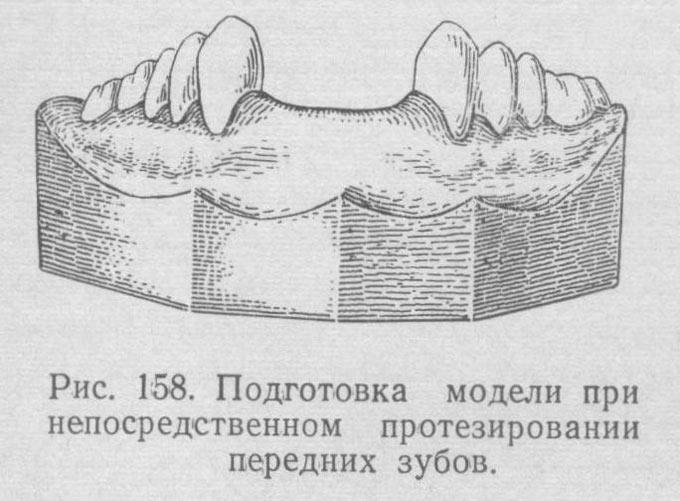 слепок передних зубов