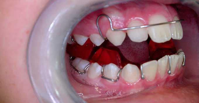 скобы для выравнивания зубов