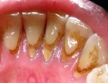 зубной камень