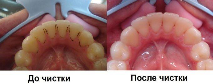 результат после чистки зубного камня