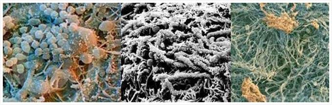 зубной налет под микроскопом