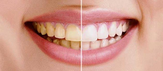 причины зубного налета