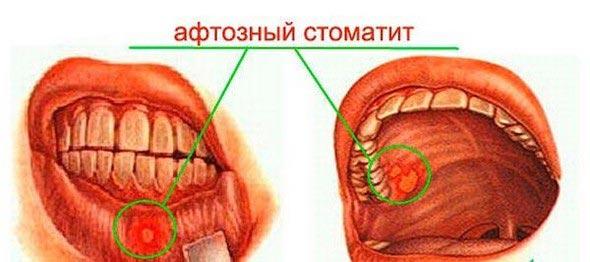 хронический афтозный стоматит