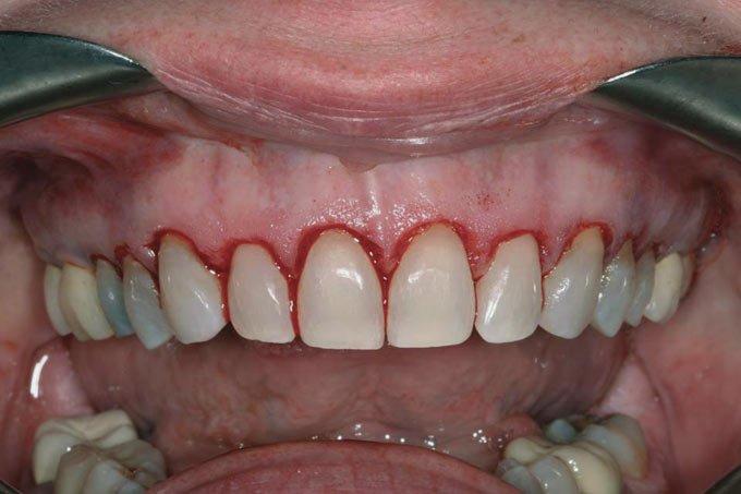 осложнения после гингивэктомии