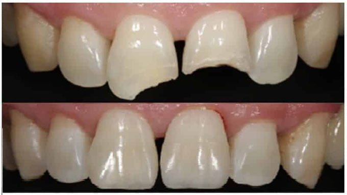 наращивание передних зубов