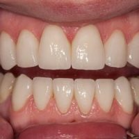 Реставрация зубов с помощью наращивания
