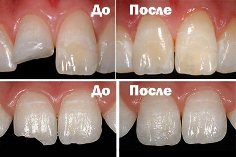 Прямая реставрация зубов отзывы