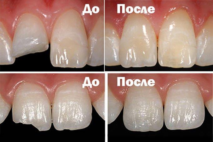 наращивание зуба пломбой