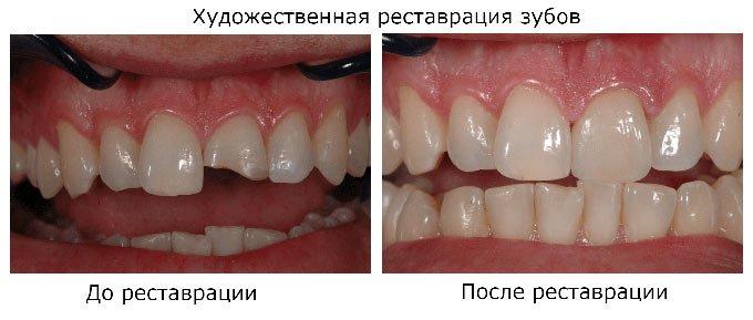 зубы после реставрации