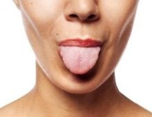 глоссодиния языка
