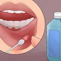 Причины возникновения кисты на губе и способы лечения