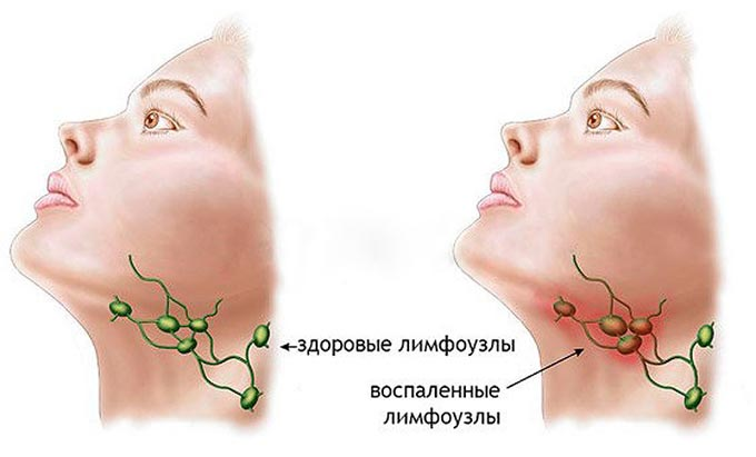 воспаленные лимфоузлы