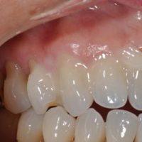 Проверенные методы реминерализации эмали зубов