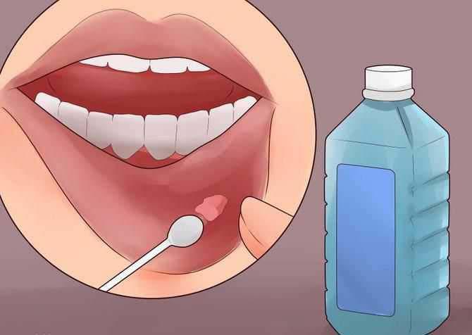 домашние средства от кисты на губе