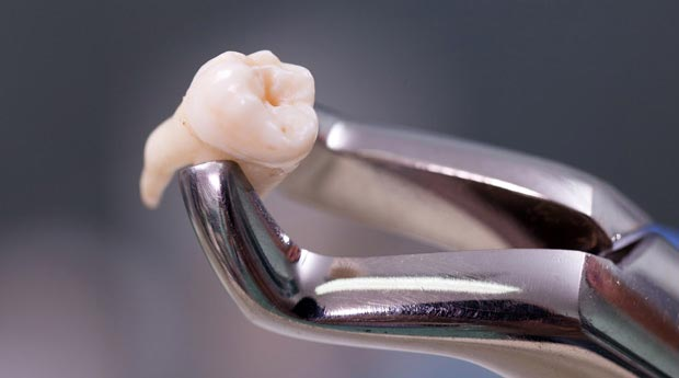 нужно ли лечить зуб мудрости