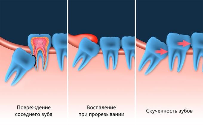 последствия роста зубов мудрости