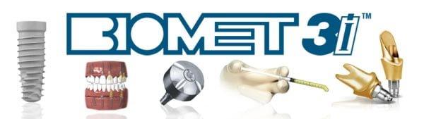 установка имплантов зубов