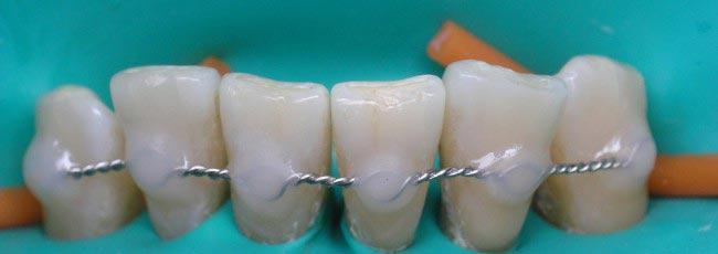 шинирование нижних зубов