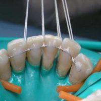 Материалы и виды шинирования зубов