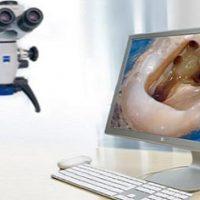 Специфика лечения зубов под микроскопом