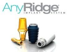 Импланты AnyRidge