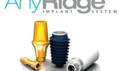 Обзор премиальных зубных имплантов AnyRidge