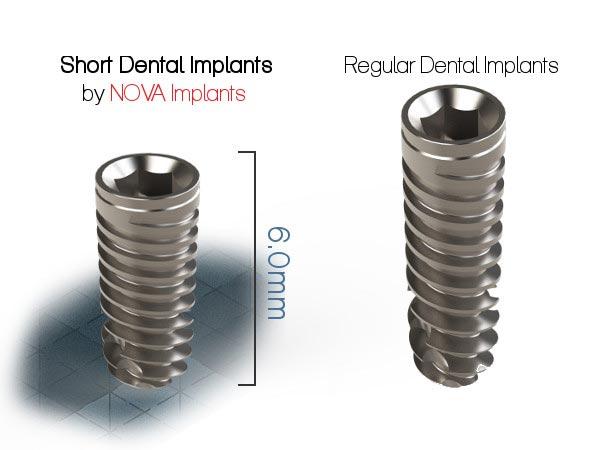 преимущества имплантов Nova