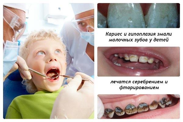 метод серебрения молочных зубов