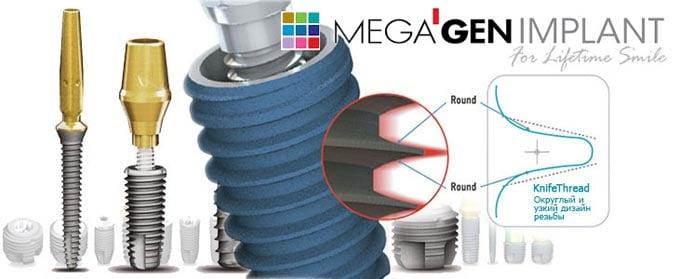 megagen производитель имплантов