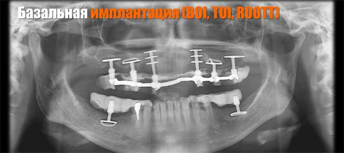 базальная имплантация BOI