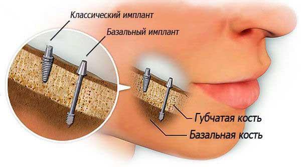 как фиксируется базальный имплант
