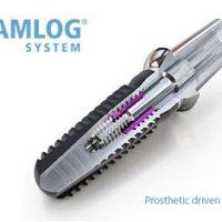8 главных достоинств зубных имплантов Camlog