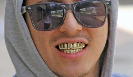 Украшение зубов модными грилзами