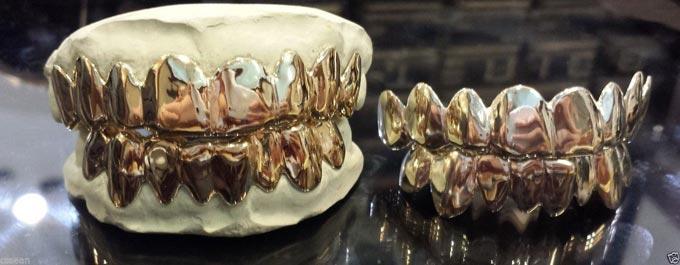 грилзы на зубы