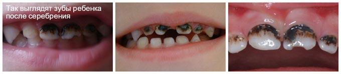 молочные зубы после серебрения