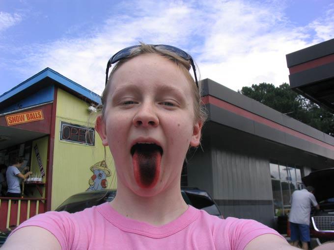 черный налет на языке у ребенка