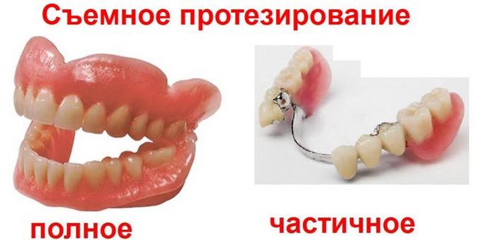 полный и частичный зубной протез