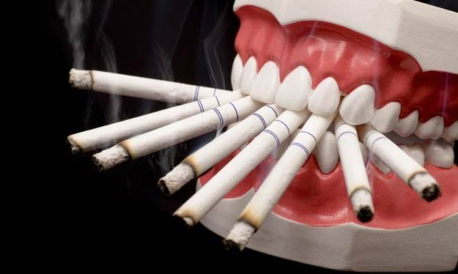 болезнь курильщика - лейкоплакия