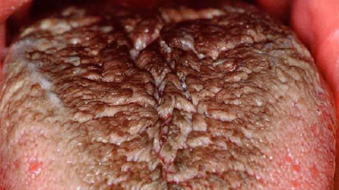 черный налет на языке после антибиотиков