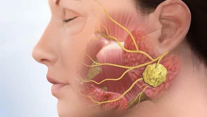 воспаления в полости рта